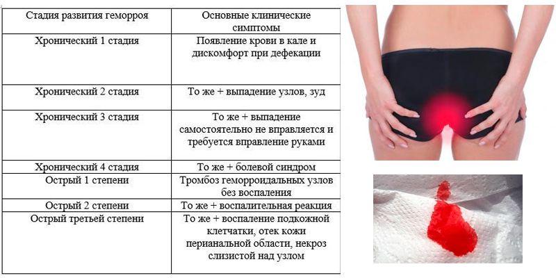 Симптомы Геморою