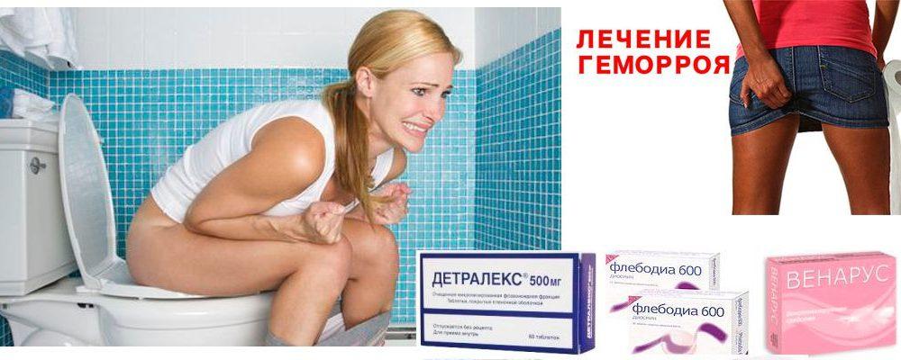 Как лечить геморрой в домашних условиях быстро у женщин беременных 31