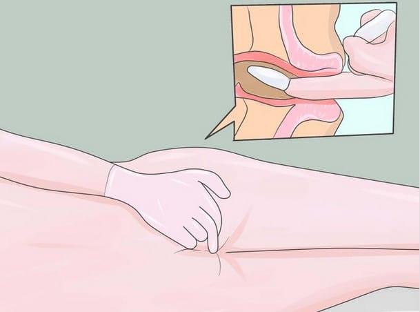 Разжражжение при сексе недостаток смазки