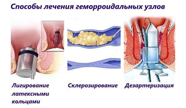 Геморроидальный узел лечить в домашних условиях