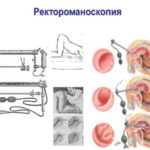 Ректроманоскопия