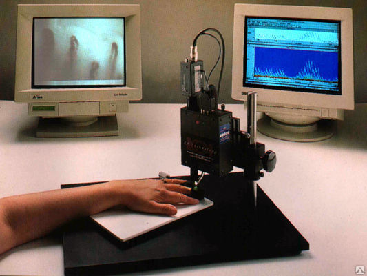 Капилляроскопия