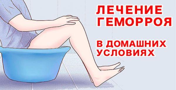 ванночки от геморроидальных узлов