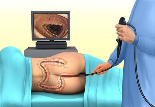 Колоноскопия при внутреннем геморрое