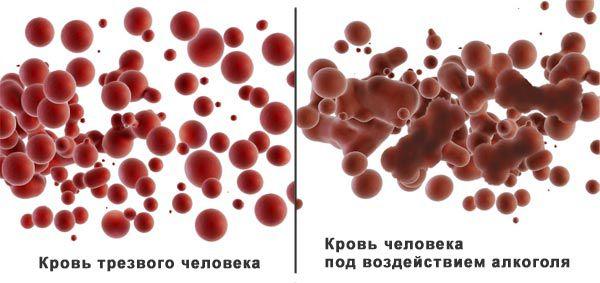 Фото: кровь и спирт