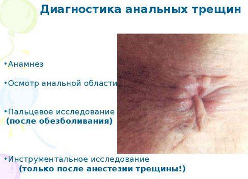 Боль в пояснице растяжение лечение