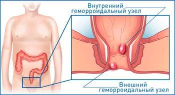 Лечение на начальной стадии