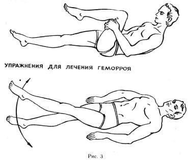 Упражнение от геморроя номер 1