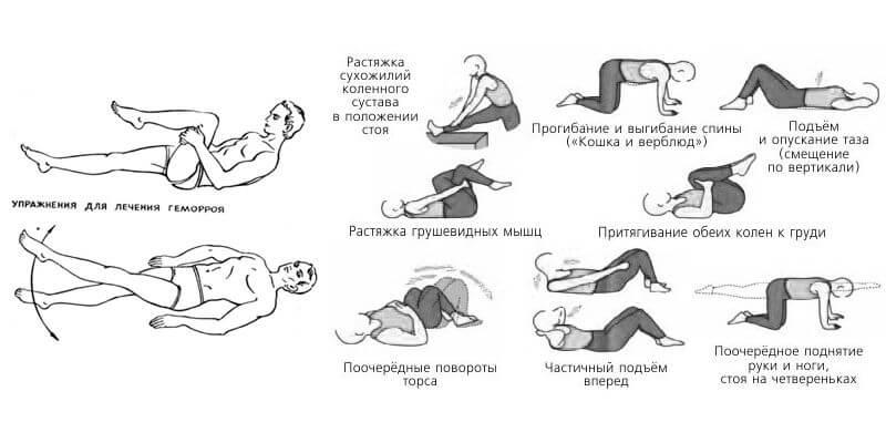 упражнения от геморроидальных шишек