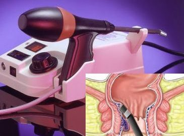 аппарат фотокоагуляция геморроидальных узлов