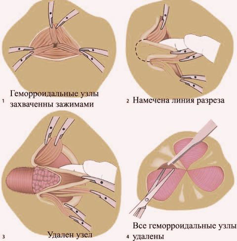 геморроидэктомия удаление узлов