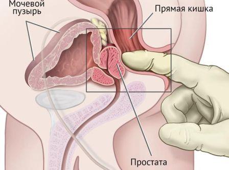 Пальцевое исследование прямой кишки при геморрое