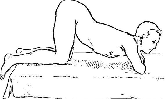 Ректороманоскопия положение тела