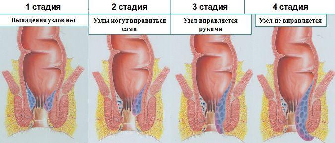 Стадии болезни фото