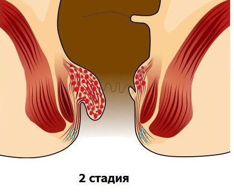 болезнь 2 стадии фото