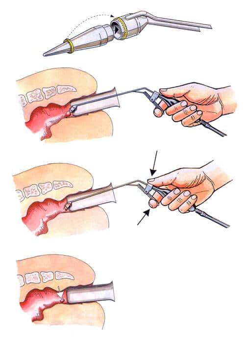 Лигирование латексными кольцами фотография процедура