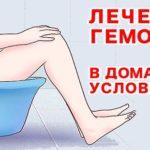 Ванночки при геморрое: что полезно, как приготовить?