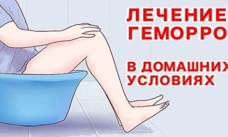 Ванночки из ромашки при геморрое