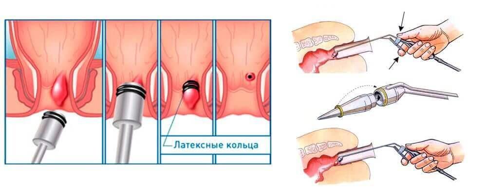 Лигирование геморроидальных узлов латексными кольцами, удаление геморроя кольцами