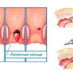 Лигирование геморроидальных узлов латексными кольцами