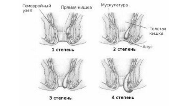 Стадии геморроя и стадии патологии