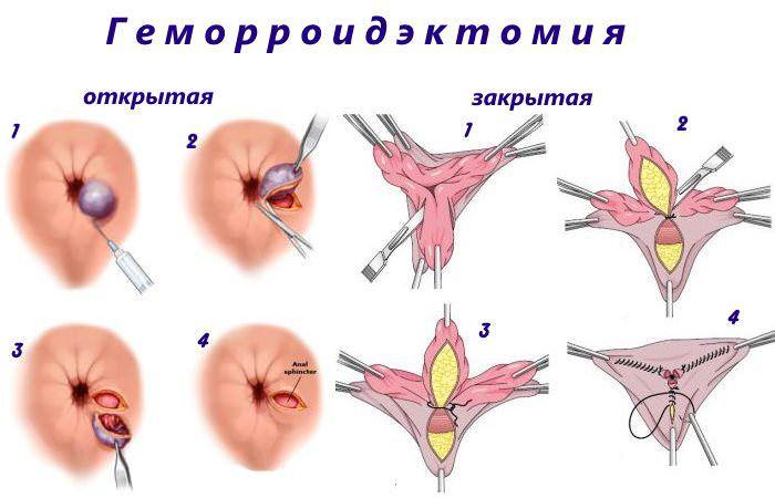 геморроидэктомия - операция
