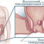 Воспаление геморроидальных узлов: симптомы и лечение