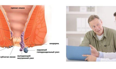 хронический геморрой - лечение