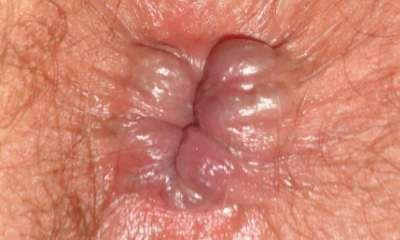 Аскаридоз  симптомы болезни профилактика и лечение