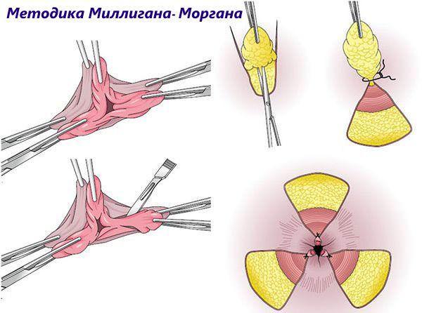 Хирургическая операция по удалению геморроя