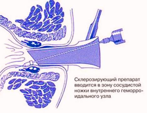склеротерапия у женщин