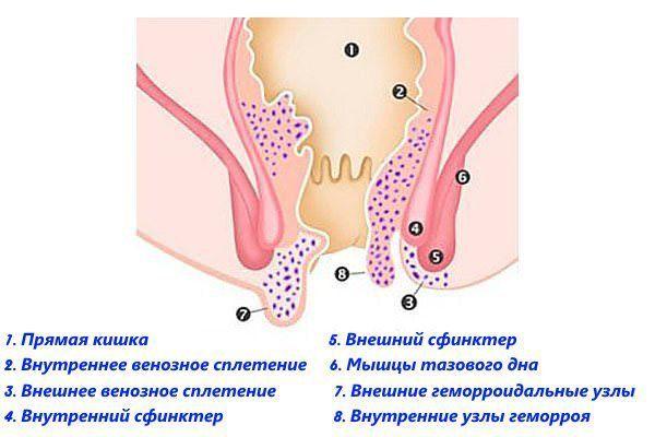 Тромбоз геморроидального узла с кровью