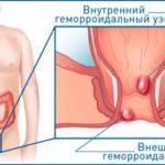 Внутренние геморроидальные узлы: симптомы и лечение