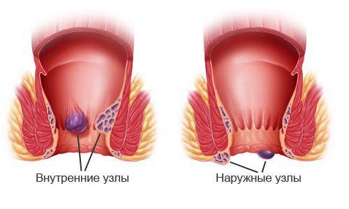 Фото воспаление узлов