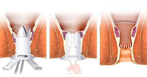 Геморроидопексия фото