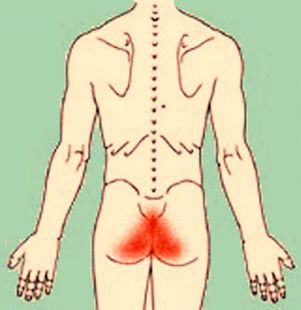Симптомы при воспалении внутренних узлов