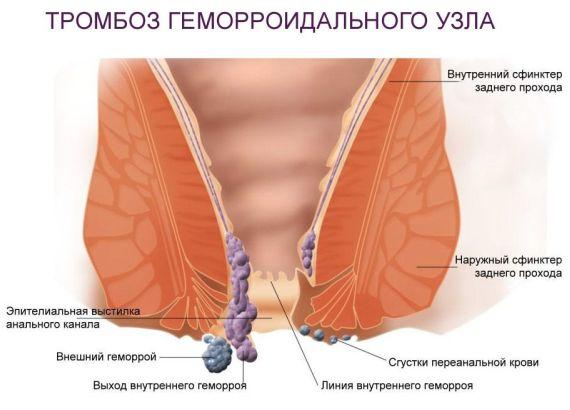 тромбоз геморроидального узла 4 стадия геморроя фото