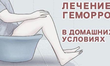 Лечение геморроя домашними средствами