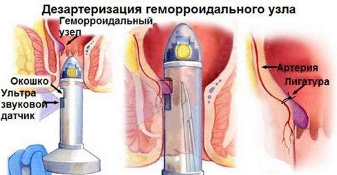 удаление геморроидальных узлов