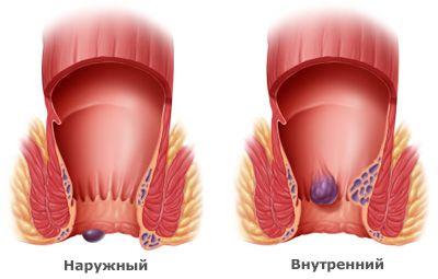 внутренние геморроидальные узлы фото