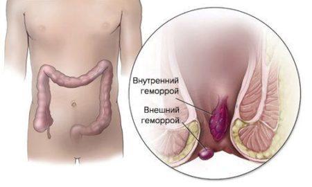 Геморрой и кровотечение