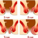 Четвертая стадия геморроя: лечение и профилактика