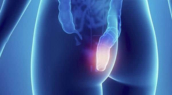 Тромбоз узла боль в заднем проходе
