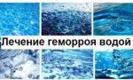 Вода при геморрое