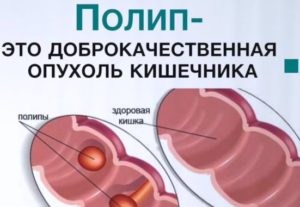 геморрой выделение слизи лечение